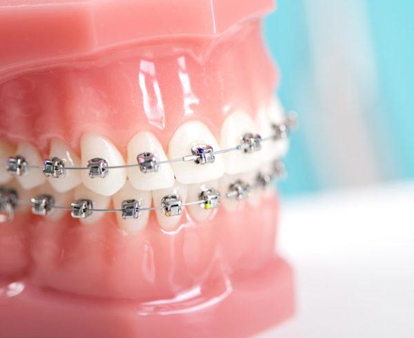 Dentista Somma Lombardo